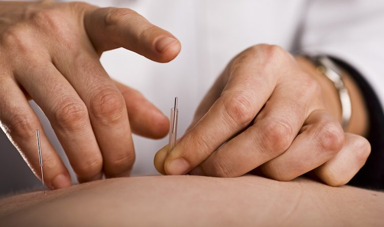 CAN ACUPUNCTURE IMPROVE FERTILITY?